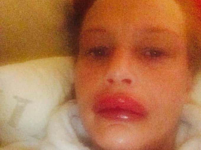 Hon drabbades av en livshotande allergichock.