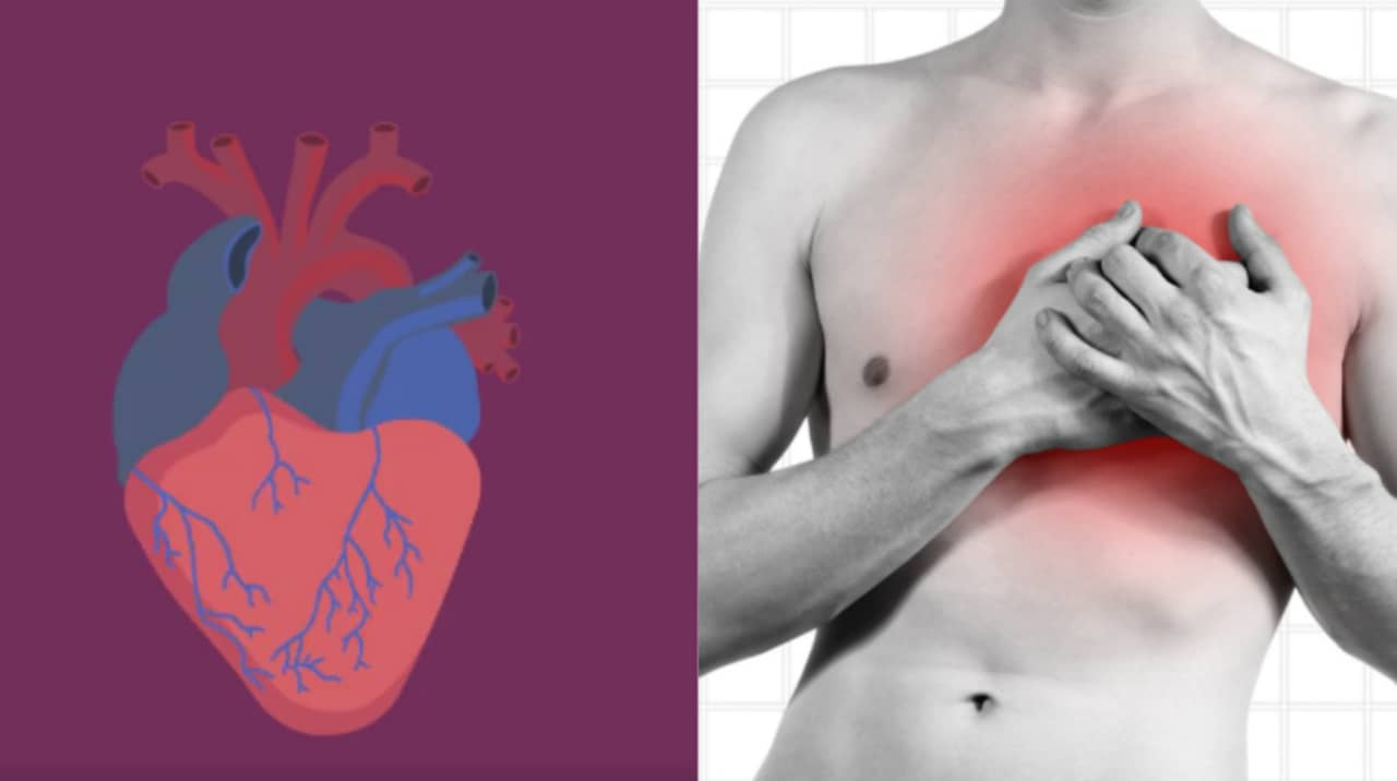 hjärtesorg