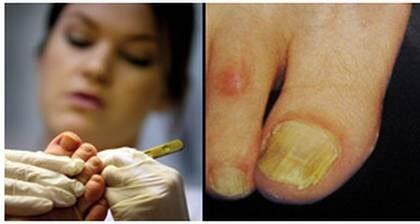 Behandling mot nagelsvamp