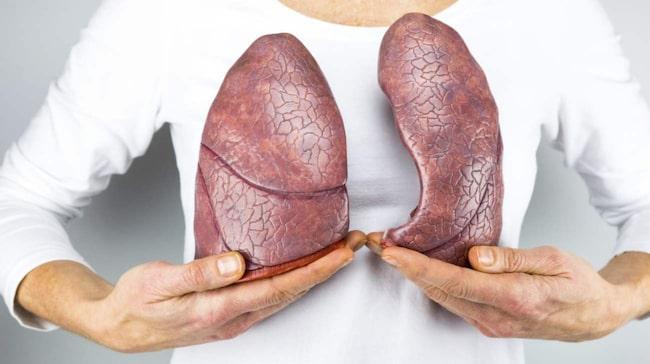 <span>Under de senaste 20 åren har lungcancer bland män minskat med cirka 0,5 procent per år medan den har gått upp med cirka 3 procent per år bland kvinnor.</span>