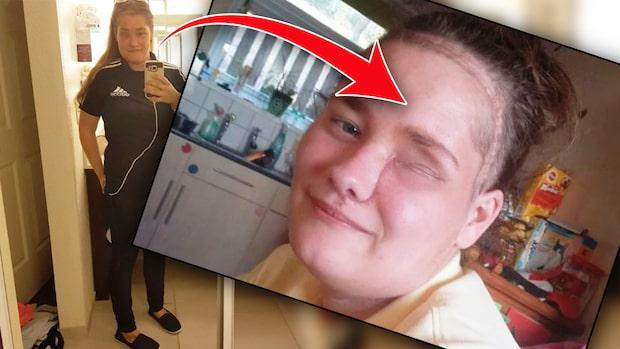 Gick till tandläkaren - fick ögat bortopererat