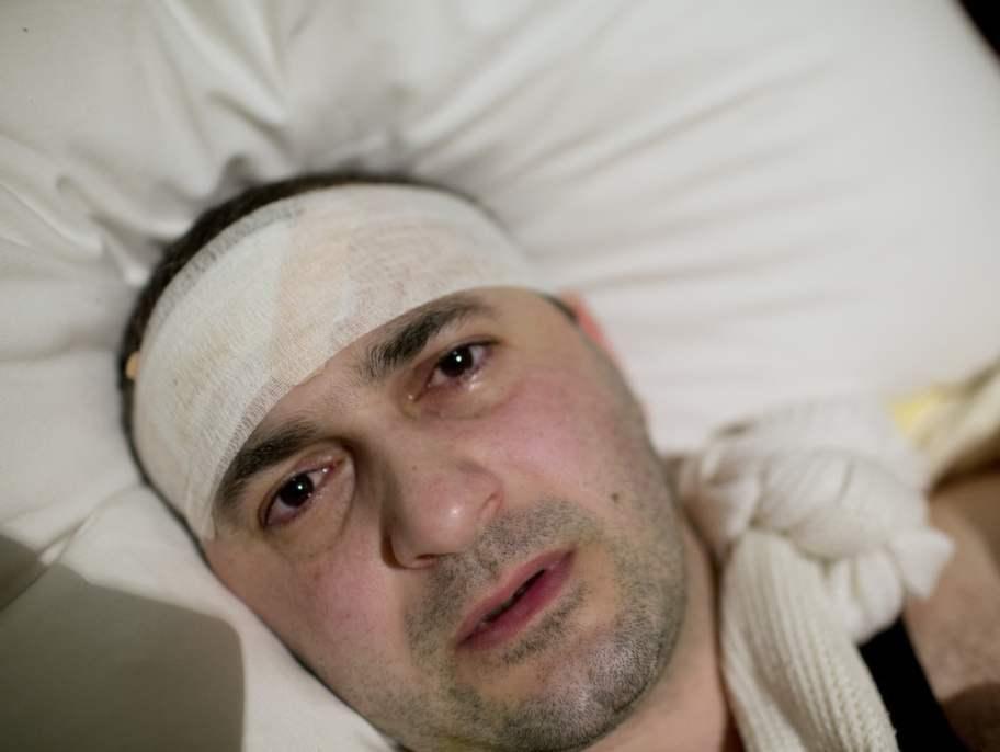 """Bandaget på Mher Sahakyam huvud täcker såret i pannan. Armen är obrukbar. """"Jag tror det var oligarken och parlamentarikern Levon Sargsyans livvakter som misshandlade mig, samma män som tvingade mig att fly efter mina avslöjande artiklar om honom."""" Foto: Johan Persson"""