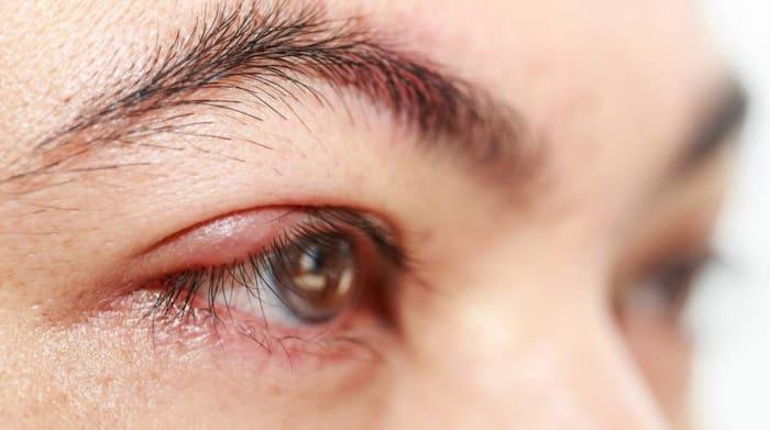 röda svidande ögon