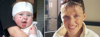 Hugo i Karlskrona har en allvarlig sjukdom som gör att huden faller av. Rachel Stenback, 33, vill hjälpa honom. Foto: Privat