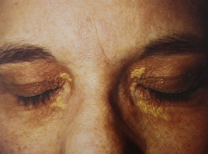 gul i ögonen