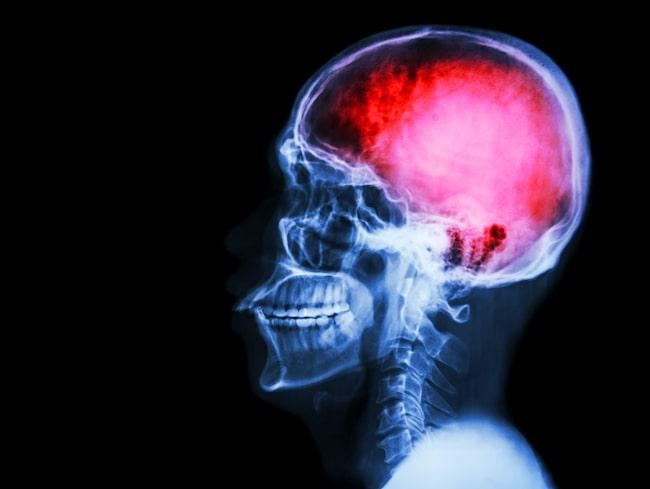 hjärnblödning vänster sida
