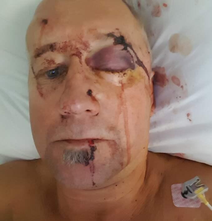 Peter sköts av nästan 50 kulor när han jobbade som jaktguide. Foto: Privat