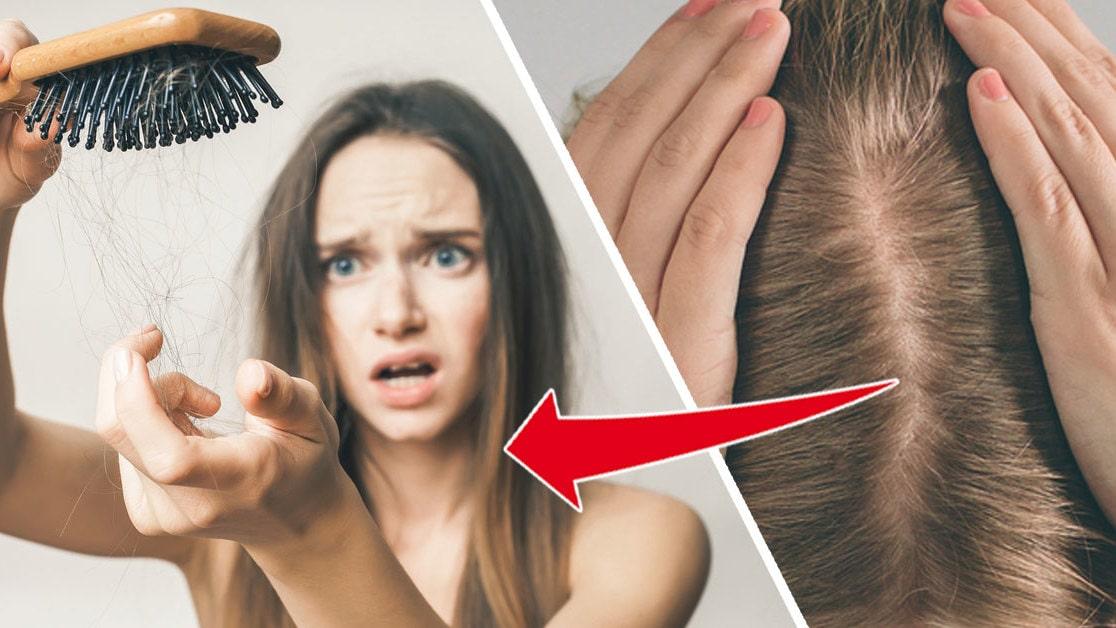 Tappar hår efter dusch