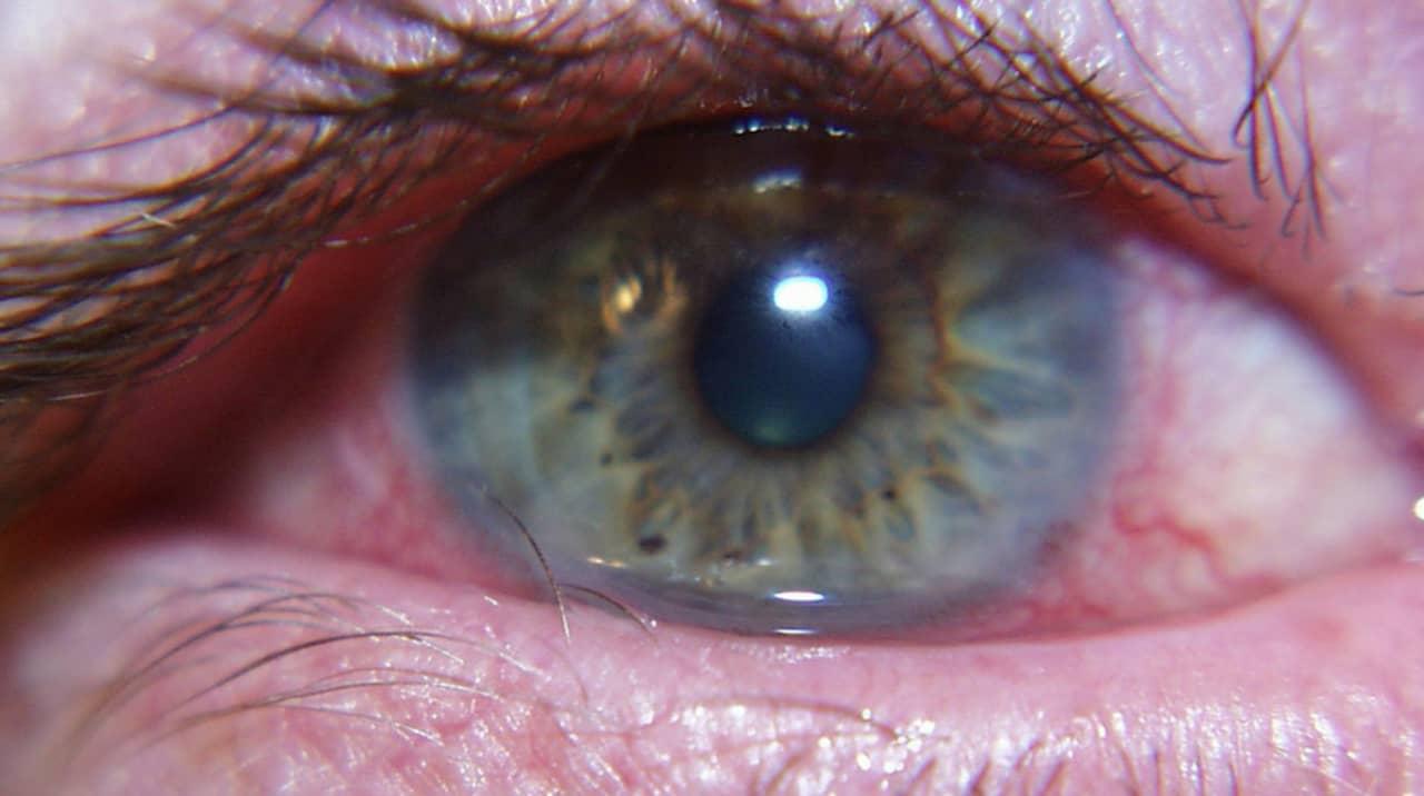 ont i höger öga
