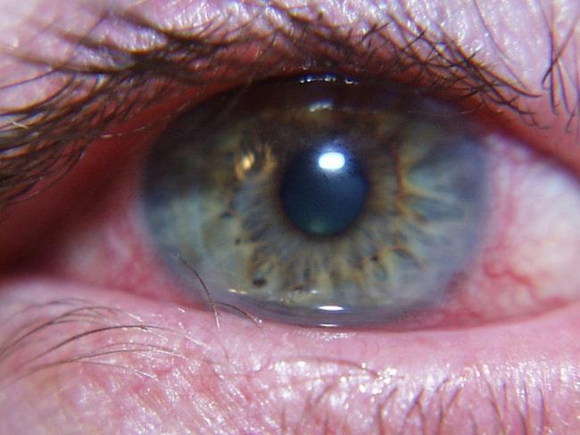 röda och irriterade ögon