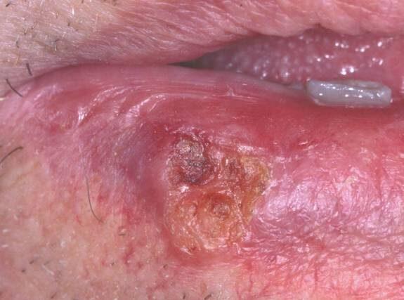 sår på tungan som inte läker