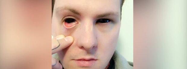 Vincent tatuerade ögonvitorna bläcksvarta