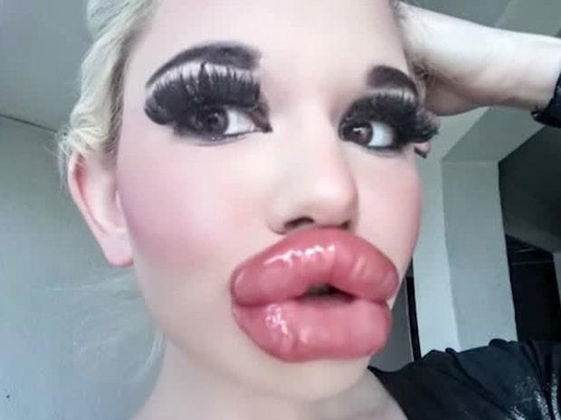 Andrea, 22, vill ha världens största läppar
