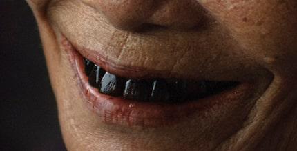 Vilka vackra svarta tänder!