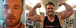 Daniel, 28, testade steroider – nu ruttnar hans ben bort