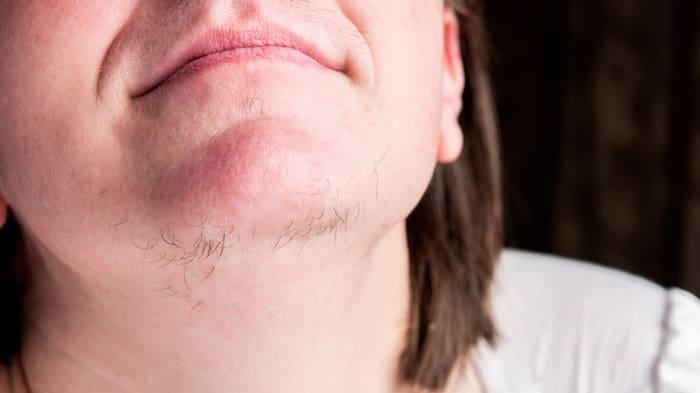 hår på hakan hos kvinnor
