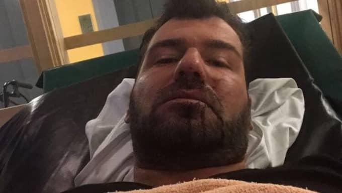 Según Gabriel Chebo los hombres le patadas, golpearlo con un objeto de metal y golpeó la cabeza contra una puerta de coche.  Foto: Privada