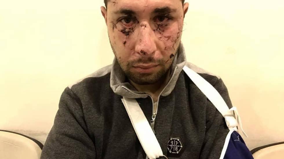 Mustafa fick inte den vård han behövde efter dådet. Foto: Magda Gad