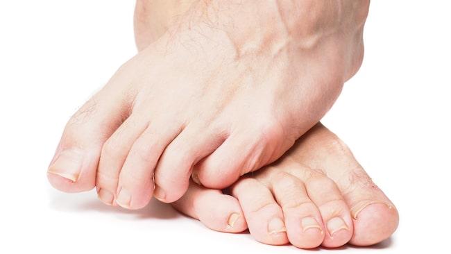 brännande smärta i foten