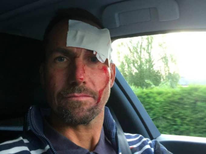 I höstas ramlade Håkan och slog sig hårt - det eftersom att musklerna har förtvinats på grund av ALS. Foto: Privat