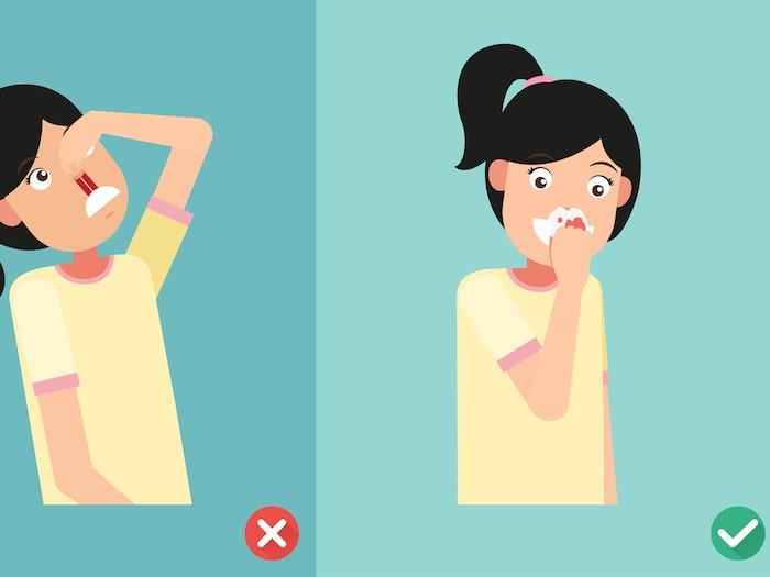 plötsligt näsblod hos vuxna