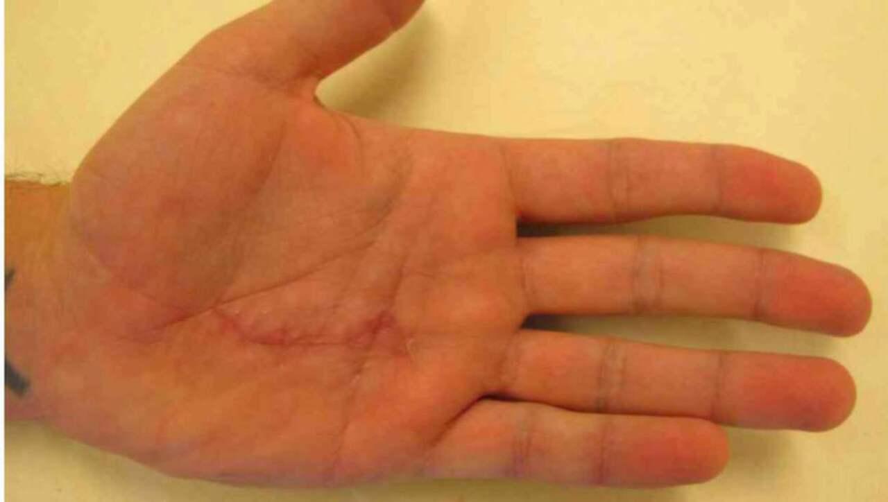 Klippte av offrets lillfinger med tang
