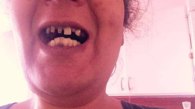 Senast hon besökte tandläkaren var förra året. Foto: Privat