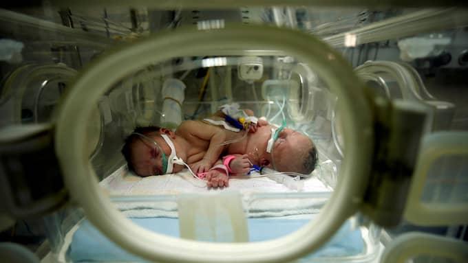 De siamesiska tvillingarna Haneen och Farah separerades – men bara Haneen överlevde. Foto: MOHAMMED SALEM / REUTERS X01571