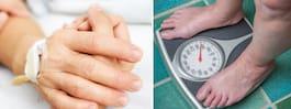 Forskare: Fetma – större cancerrisk än man tidigare trott