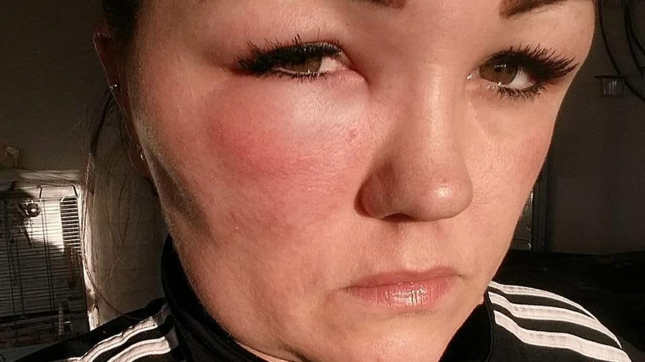 allergisk reaktion hårfärg symptom