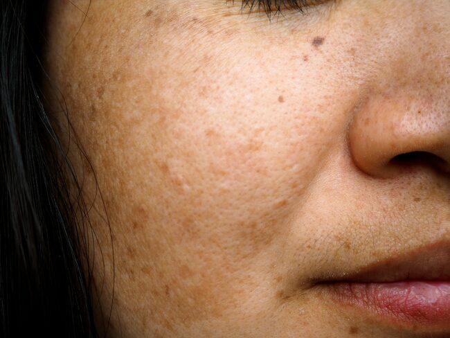 Melasma, även kallat kloasma, är pigmenteringar i huden som triggas av sol.