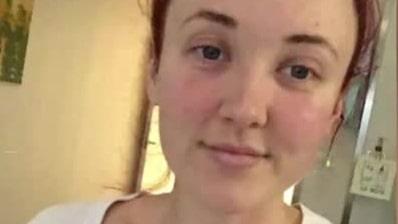 Desirée 26, gick ned i vikt – då upptäckte läkarna en 1,8 kg tumör