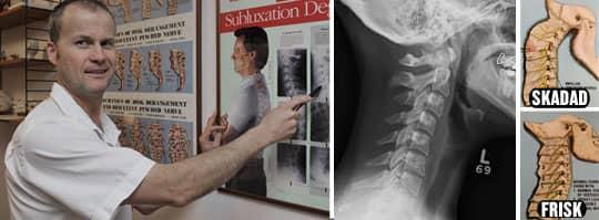 Orolig. Kiropraktor Kurt Richardsson i Lund är orolig för de skador som han ser unga mobilanvändare får. Foto: Lasse Svensson