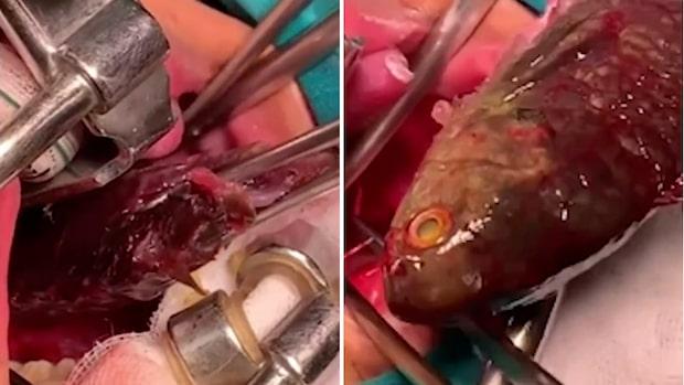 Pojken råkade svälja fisken levande –här tar läkaren bort den