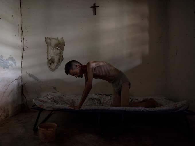Marvin Navarrete, 39, är sjuk i Aids. Han väger bara dryga 30 kilo och är mycket svag. Hans sjukdom har blivit värre sedan alla bromsmediciner i landet tagit slut. Foto: NICLAS HAMMARSTRÖM