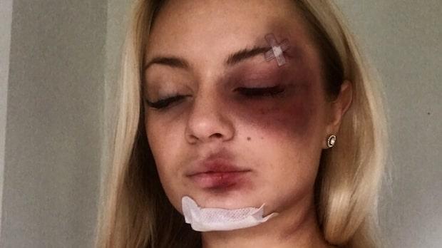 Sol, 18, misshandlades svårt – efterlyser vittnen