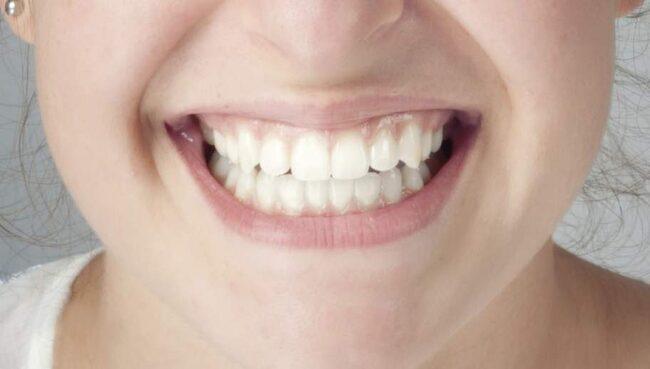 bleka tänderna linköping