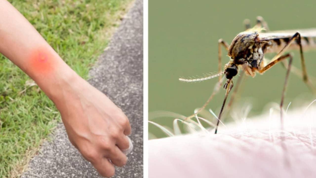 få bort myggbett snabbt