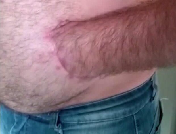 Unika metoden: Skadad hand syddes fast i magen