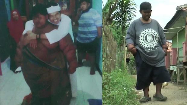 """Pojken kallades """"jordens tjockaste"""" – lever nu ett normalt liv"""