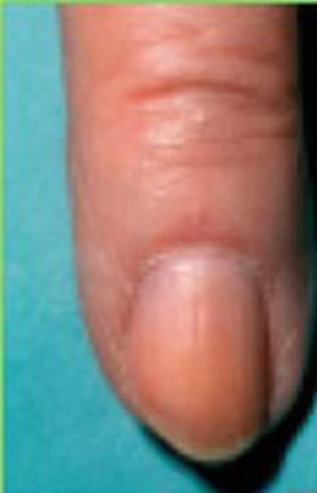 psoriasis på naglarna